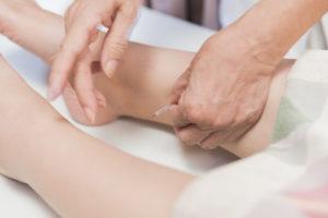 女性特有の症状になぜ鍼灸が効果的なのか