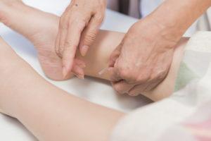 生理不順への鍼灸